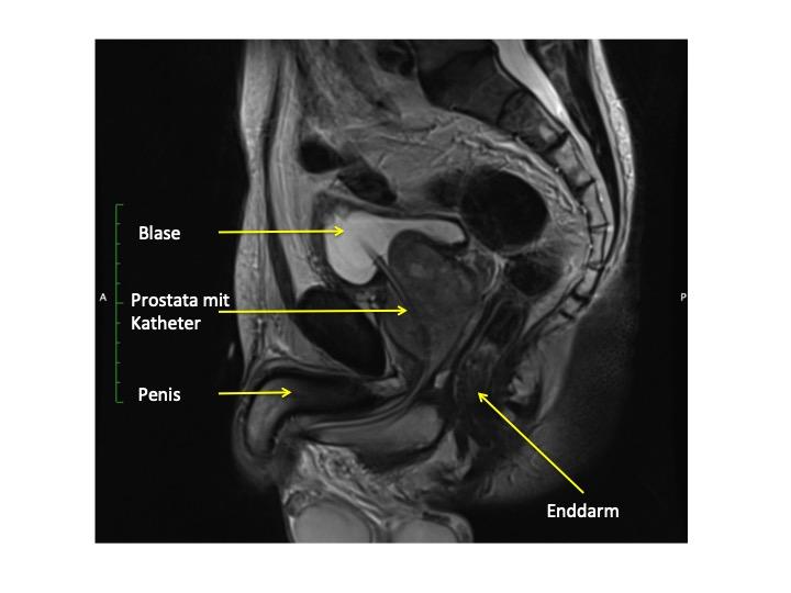 Das Bild zeigt einen MRT-Längsschnitt durch das Becken in welchem die vergrößerte Prostata sowie  der Katheter in der Harnröhre zu sehen ist.